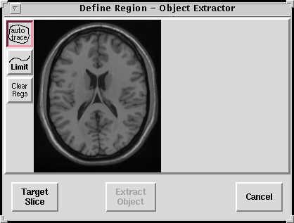 http://imaging.mrc-cbu.cam.ac.uk/images/defreg2.jpg