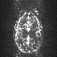 http://imaging.mrc-cbu.cam.ac.uk/images/epivar.jpg