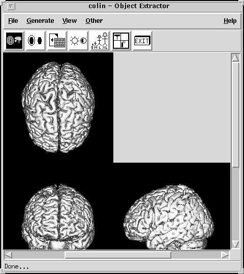 http://imaging.mrc-cbu.cam.ac.uk/images/extdone.jpg