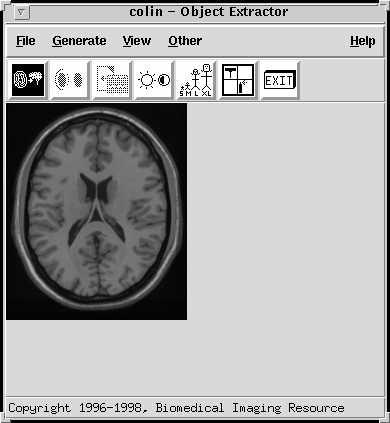 http://imaging.mrc-cbu.cam.ac.uk/images/objext.jpg