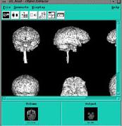 http://imaging.mrc-cbu.cam.ac.uk/images/proj3d.jpg